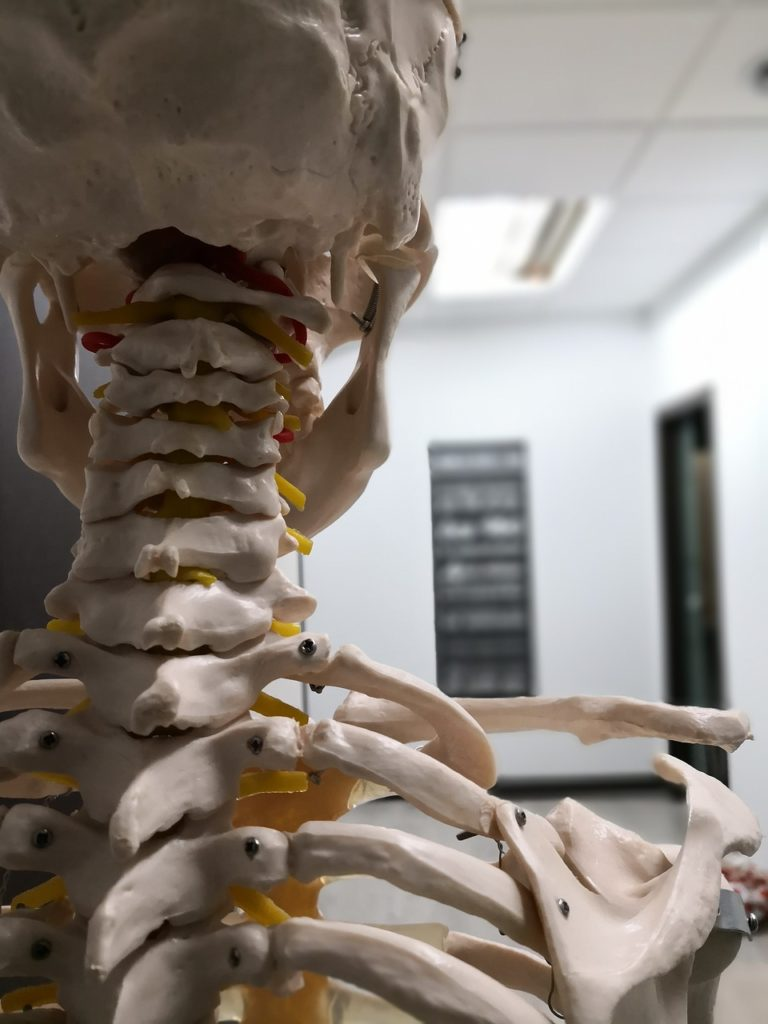 skeleton, physical therapist office, physical therapy san jose